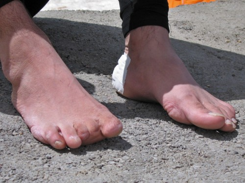 Now these are some truly weird feet.  Madjeed from Iran, who lost his toes while searching for a lost friend in the mountains. He was happy with any boot as long as it was within a few sizes of his actual foot.
